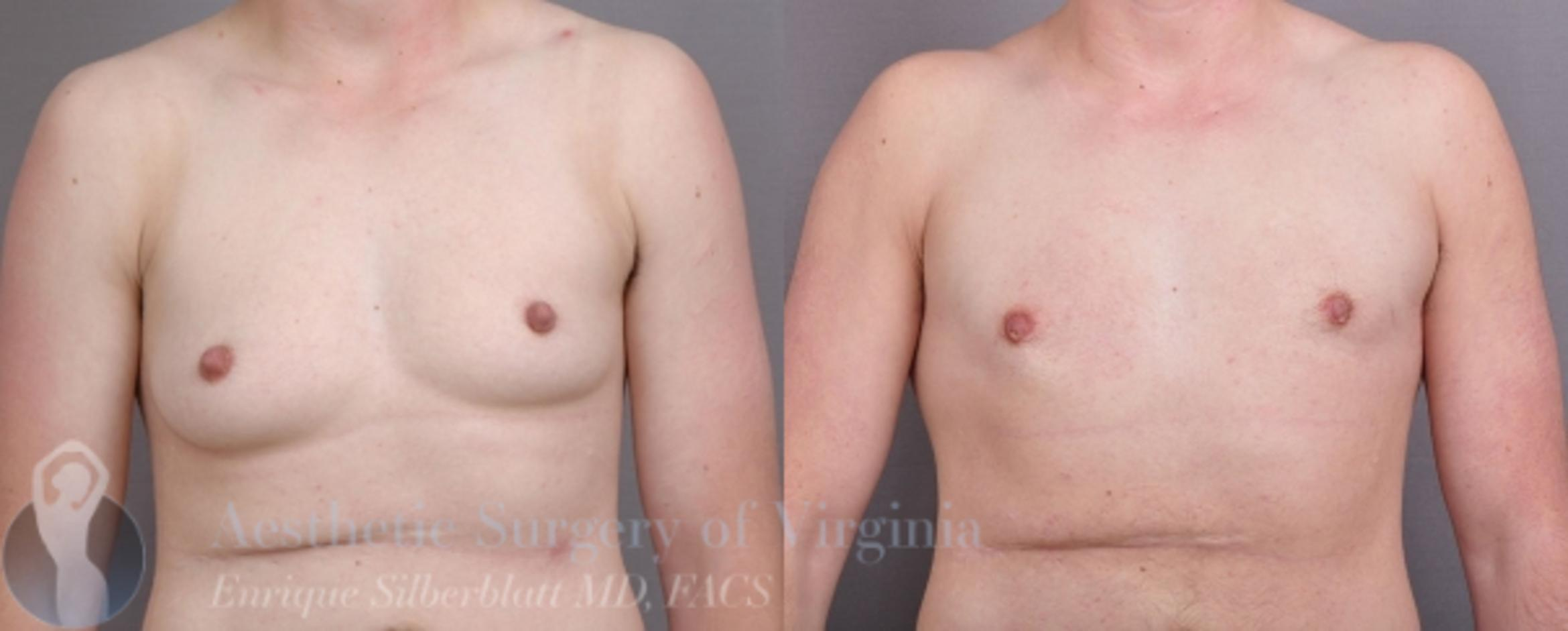 Female to Male Breast Surgery Case 56 Before & After View #1 | Roanoke, VA | Aesthetic Surgery of Virginia: Enrique Silberblatt, MD