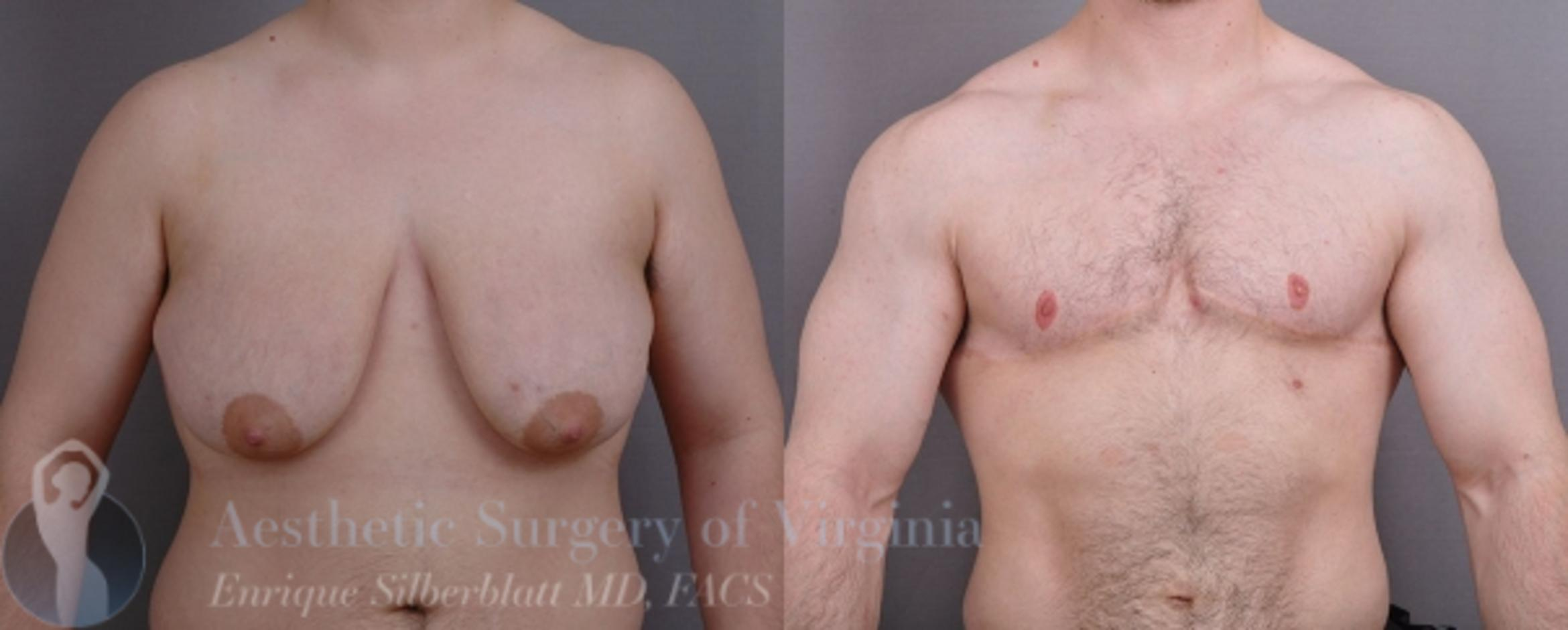 Female to Male Breast Surgery Case 57 Before & After View #1 | Roanoke, VA | Aesthetic Surgery of Virginia: Enrique Silberblatt, MD