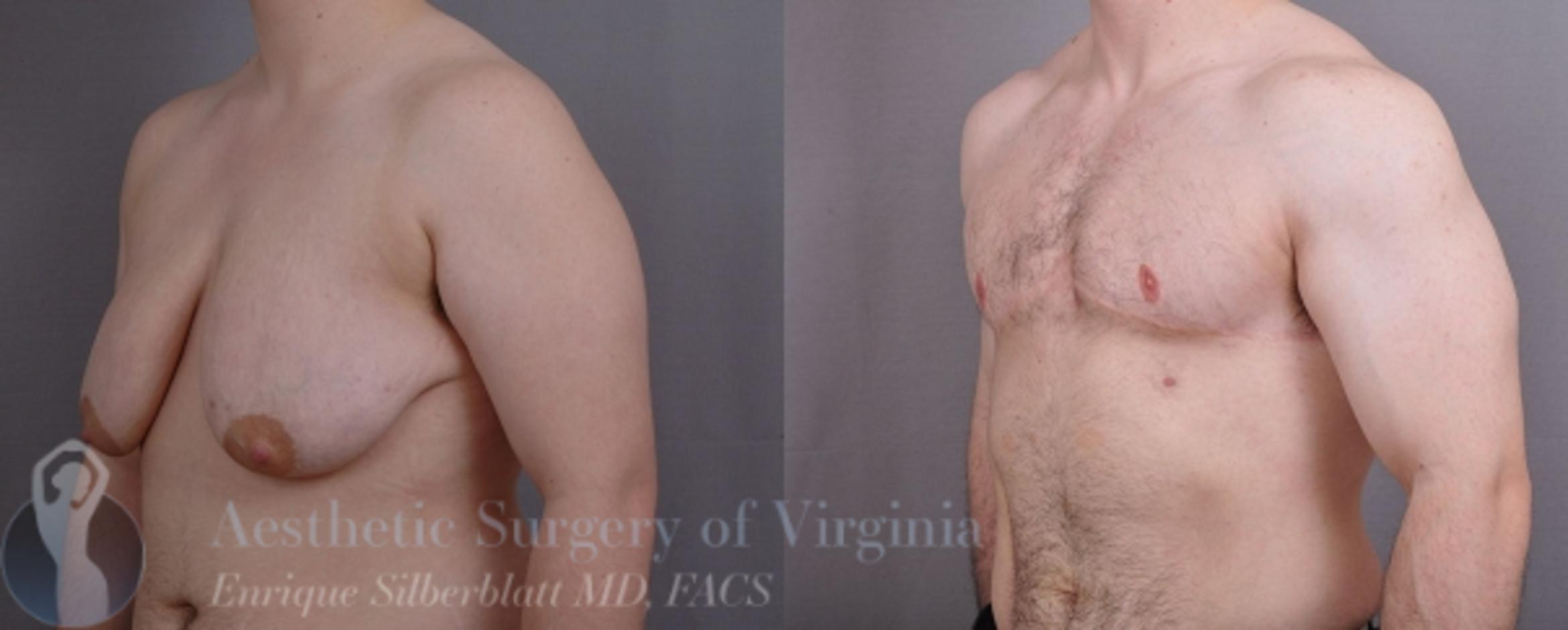 Female to Male Breast Surgery Case 57 Before & After View #2 | Roanoke, VA | Aesthetic Surgery of Virginia: Enrique Silberblatt, MD