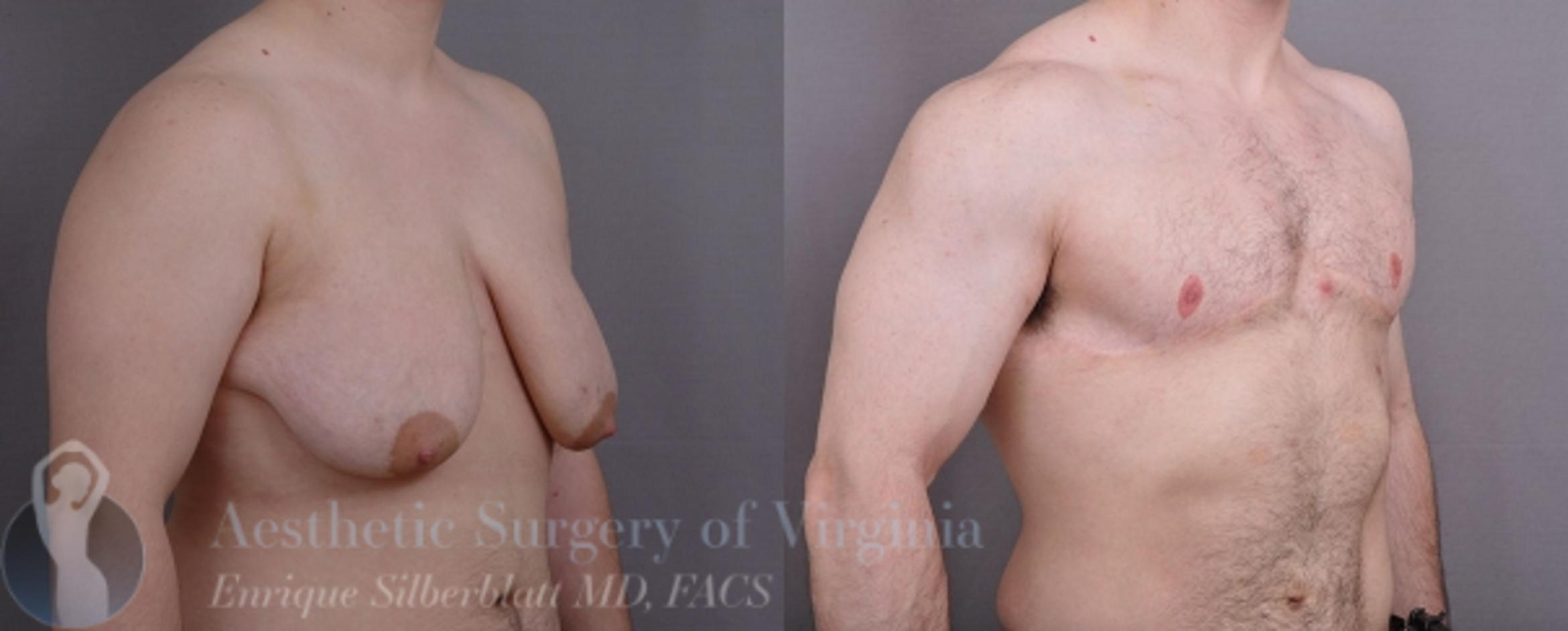 Female to Male Breast Surgery Case 57 Before & After View #3 | Roanoke, VA | Aesthetic Surgery of Virginia: Enrique Silberblatt, MD