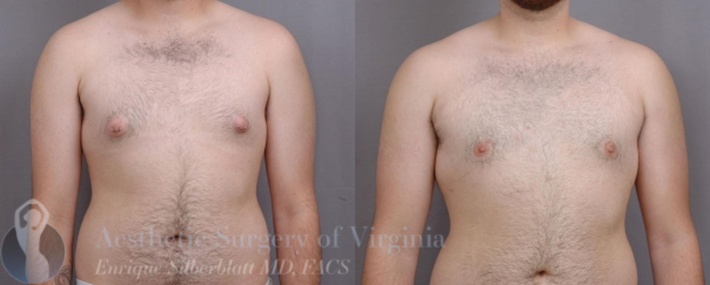 Female to Male Breast Surgery Case 58 Before & After View #1 | Roanoke, VA | Aesthetic Surgery of Virginia: Enrique Silberblatt, MD