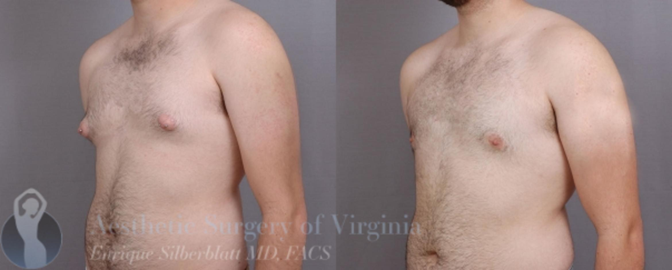 Female to Male Breast Surgery Case 58 Before & After View #2 | Roanoke, VA | Aesthetic Surgery of Virginia: Enrique Silberblatt, MD