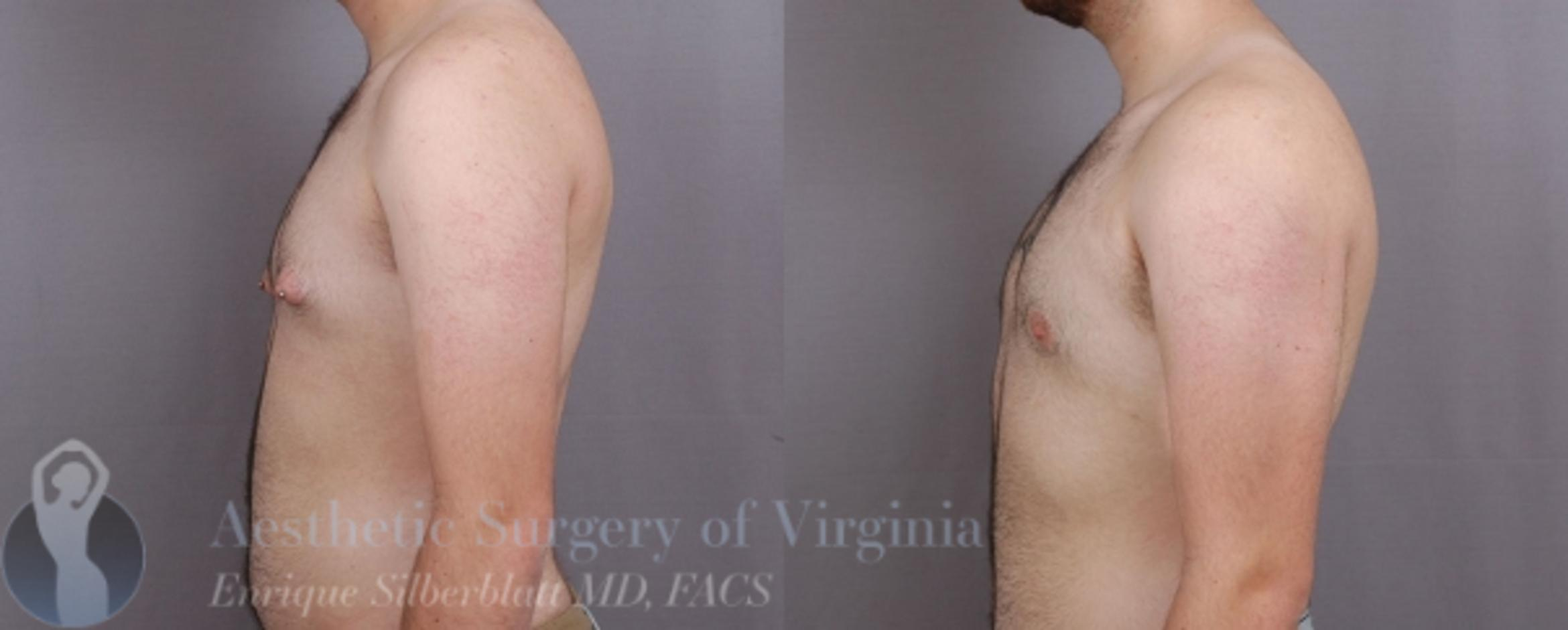 Female to Male Breast Surgery Case 58 Before & After View #3 | Roanoke, VA | Aesthetic Surgery of Virginia: Enrique Silberblatt, MD