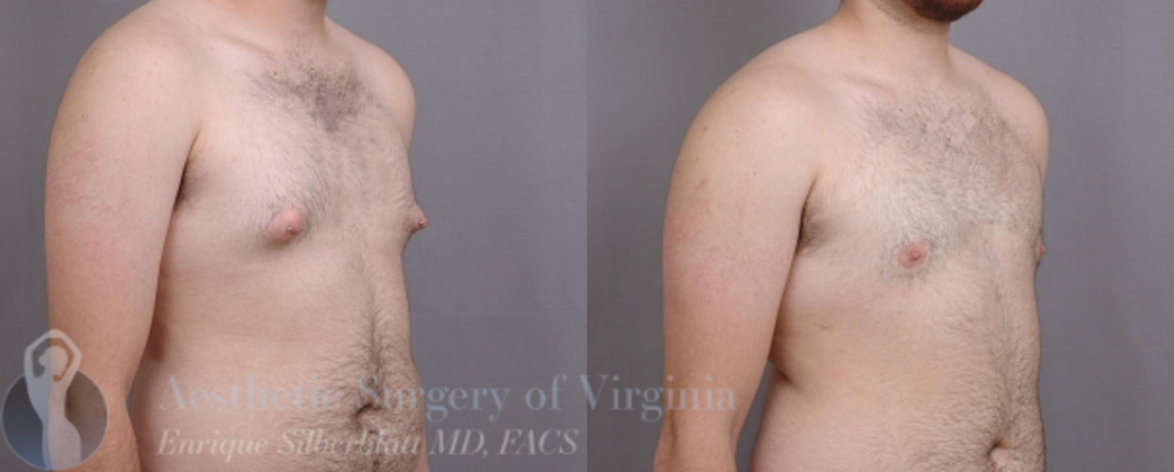 Female to Male Breast Surgery Case 58 Before & After View #4 | Roanoke, VA | Aesthetic Surgery of Virginia: Enrique Silberblatt, MD