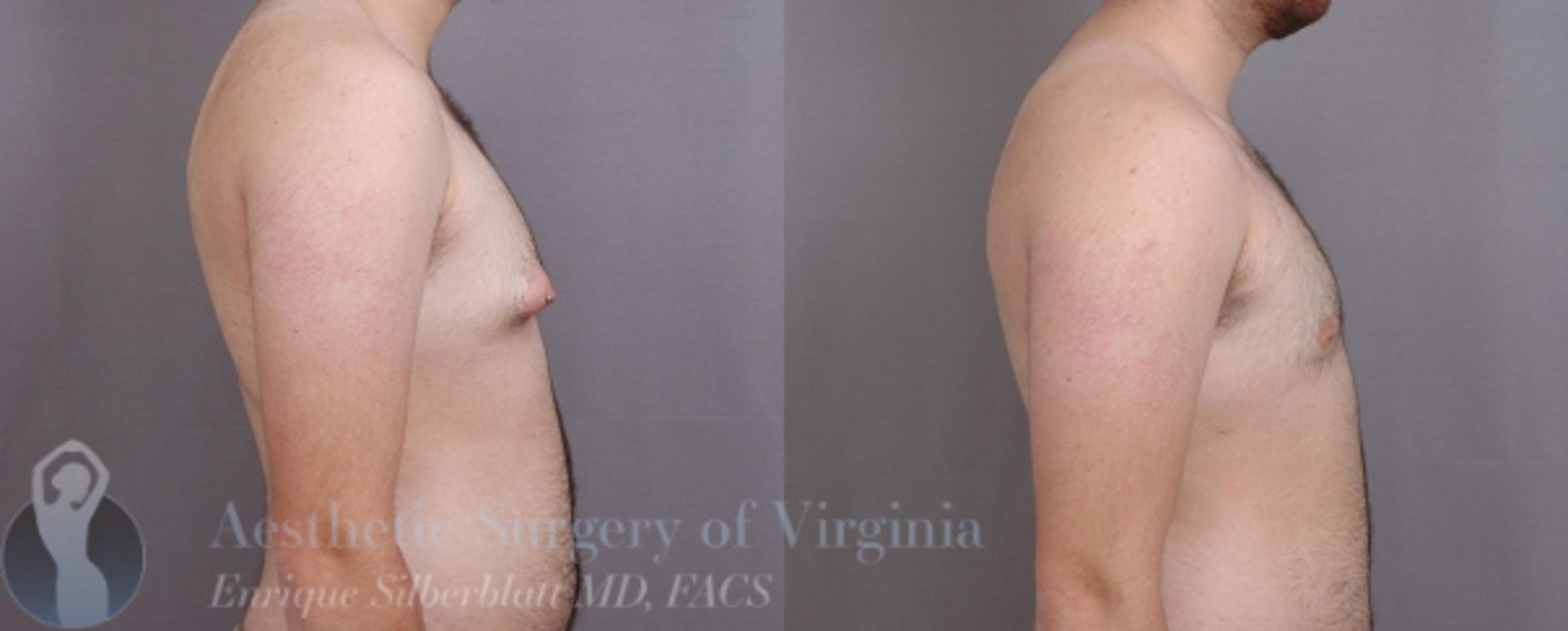 Female to Male Breast Surgery Case 58 Before & After View #5 | Roanoke, VA | Aesthetic Surgery of Virginia: Enrique Silberblatt, MD