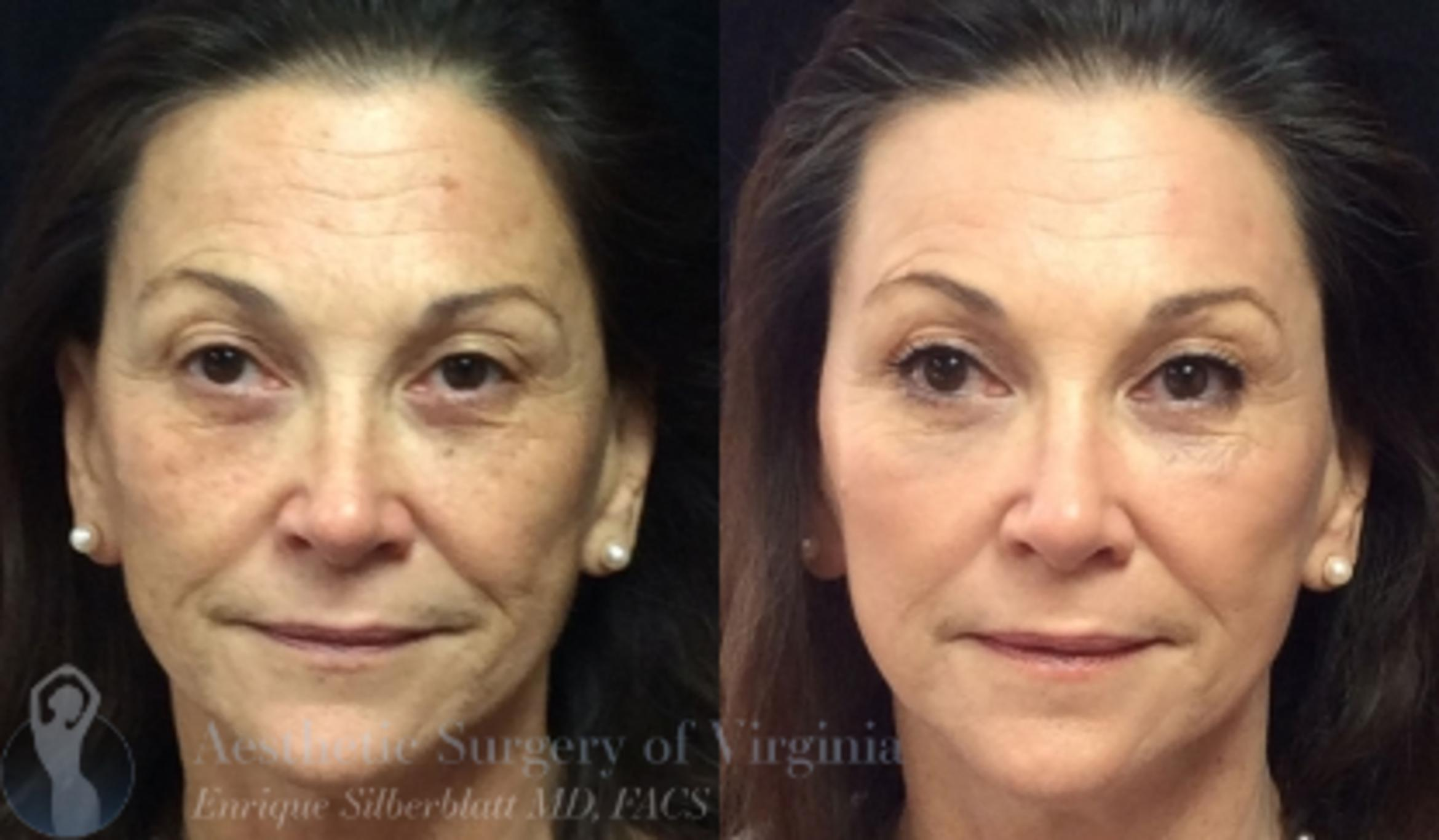 Fraxel® Laser Skin Resurfacing Case 51 Before & After View #1 | Roanoke, VA | Aesthetic Surgery of Virginia: Enrique Silberblatt, MD