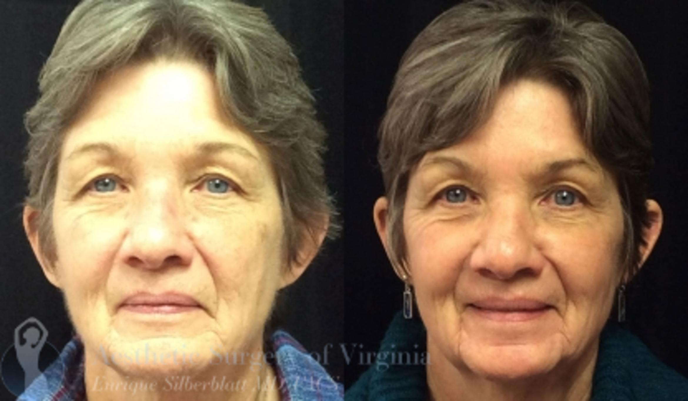 Fraxel® Laser Skin Resurfacing Case 52 Before & After View #1 | Roanoke, VA | Aesthetic Surgery of Virginia: Enrique Silberblatt, MD