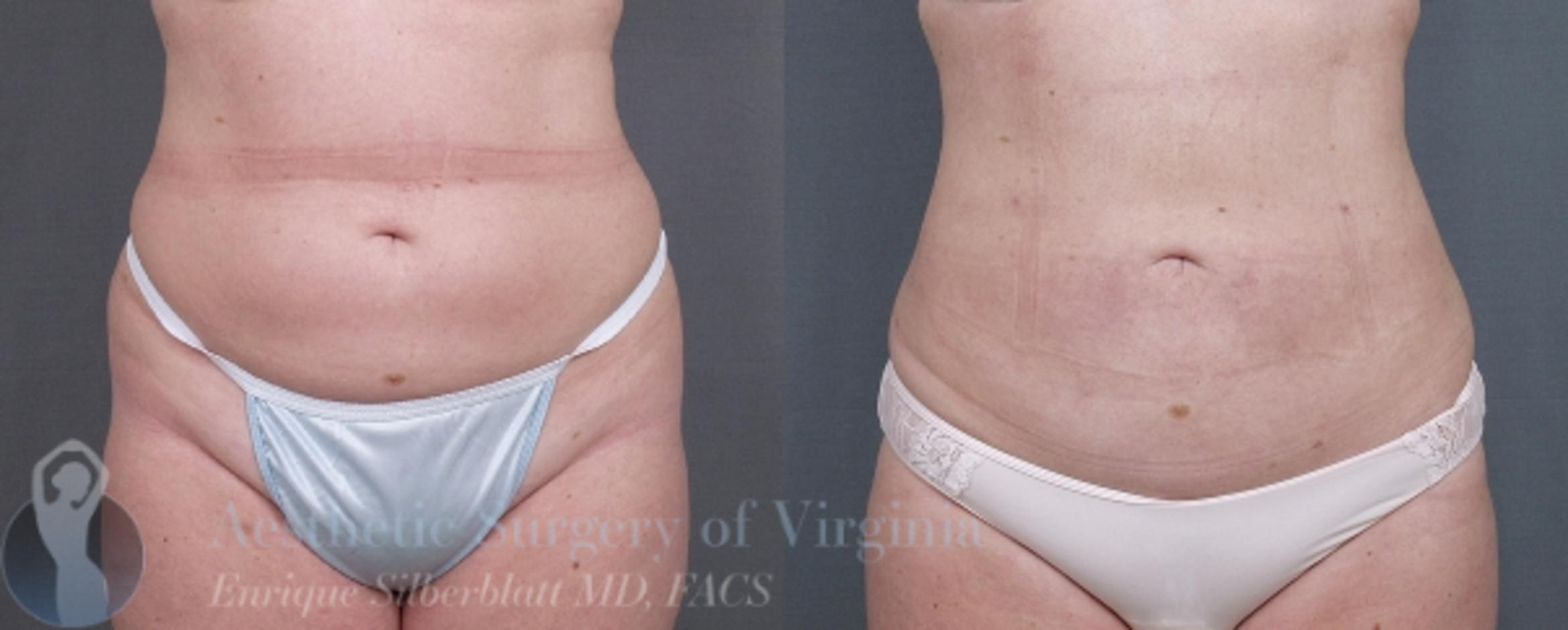 Liposuction Case 33 Before & After View #1 | Roanoke, VA | Aesthetic Surgery of Virginia: Enrique Silberblatt, MD