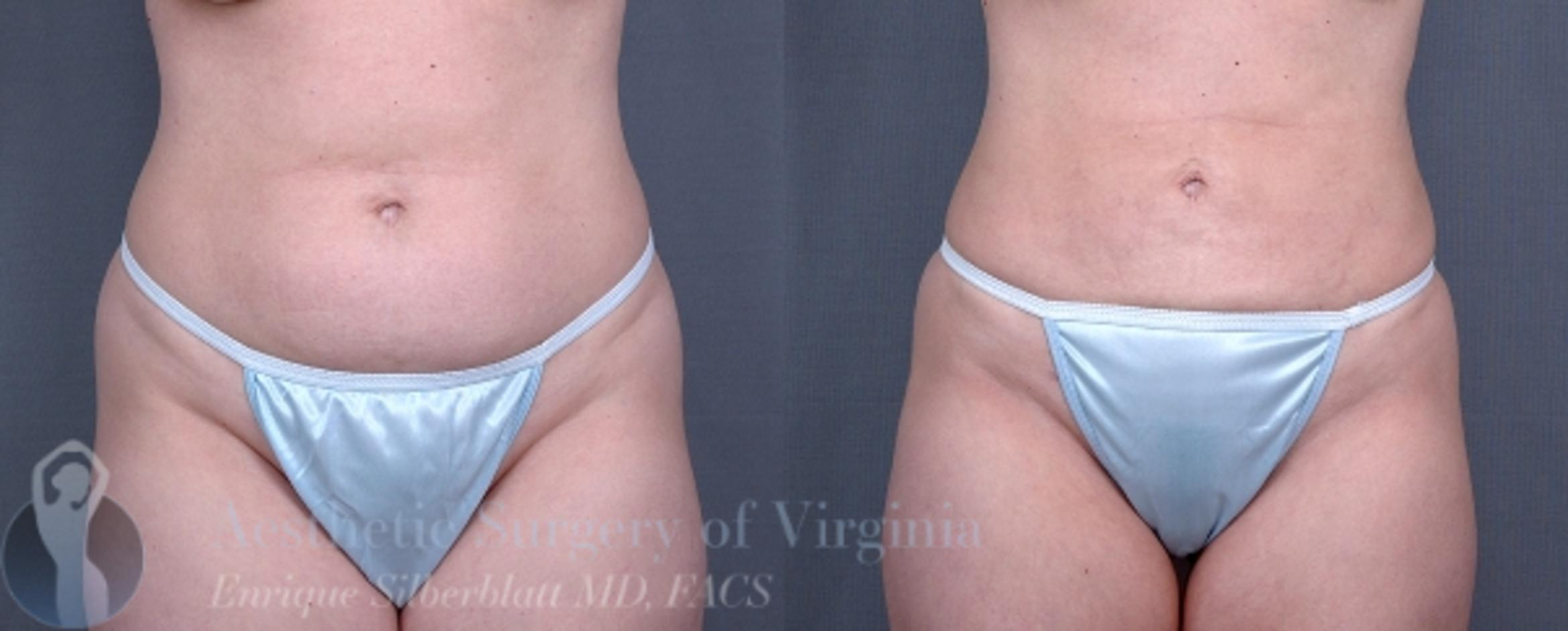 Liposuction Case 34 Before & After View #1 | Roanoke, VA | Aesthetic Surgery of Virginia: Enrique Silberblatt, MD