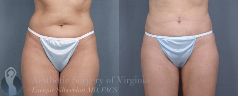 Liposuction Before After Photos Patient 36 Roanoke Va Aesthetic Surgery Of Virginia Enrique Silberblatt Md