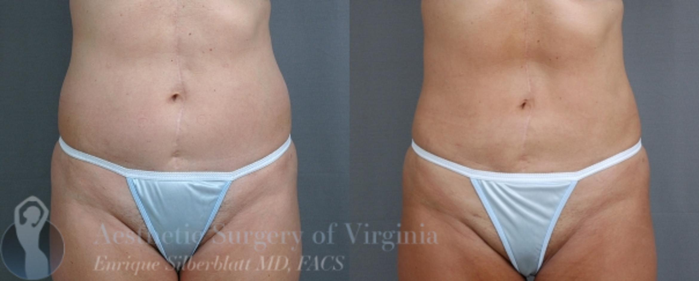 Liposuction Case 37 Before & After View #1 | Roanoke, VA | Aesthetic Surgery of Virginia: Enrique Silberblatt, MD