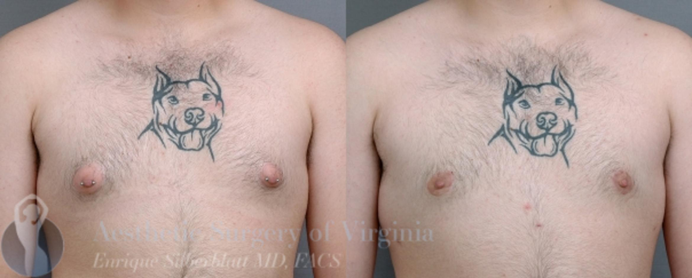 Male Breast Reduction (Gynecomastia) Case 24 Before & After View #1 | Roanoke, VA | Aesthetic Surgery of Virginia: Enrique Silberblatt, MD
