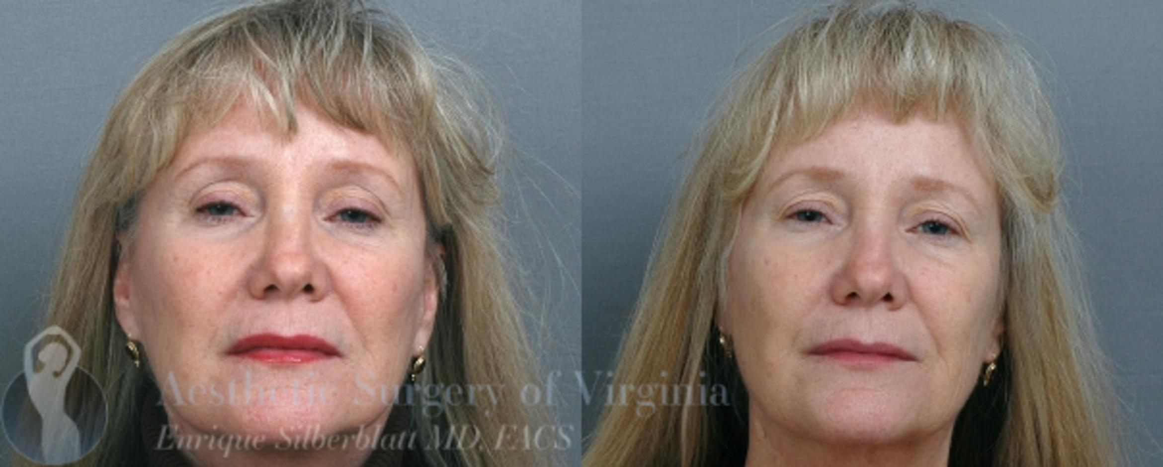Mini Facelift Case 39 Before & After View #1 | Roanoke, VA | Aesthetic Surgery of Virginia: Enrique Silberblatt, MD