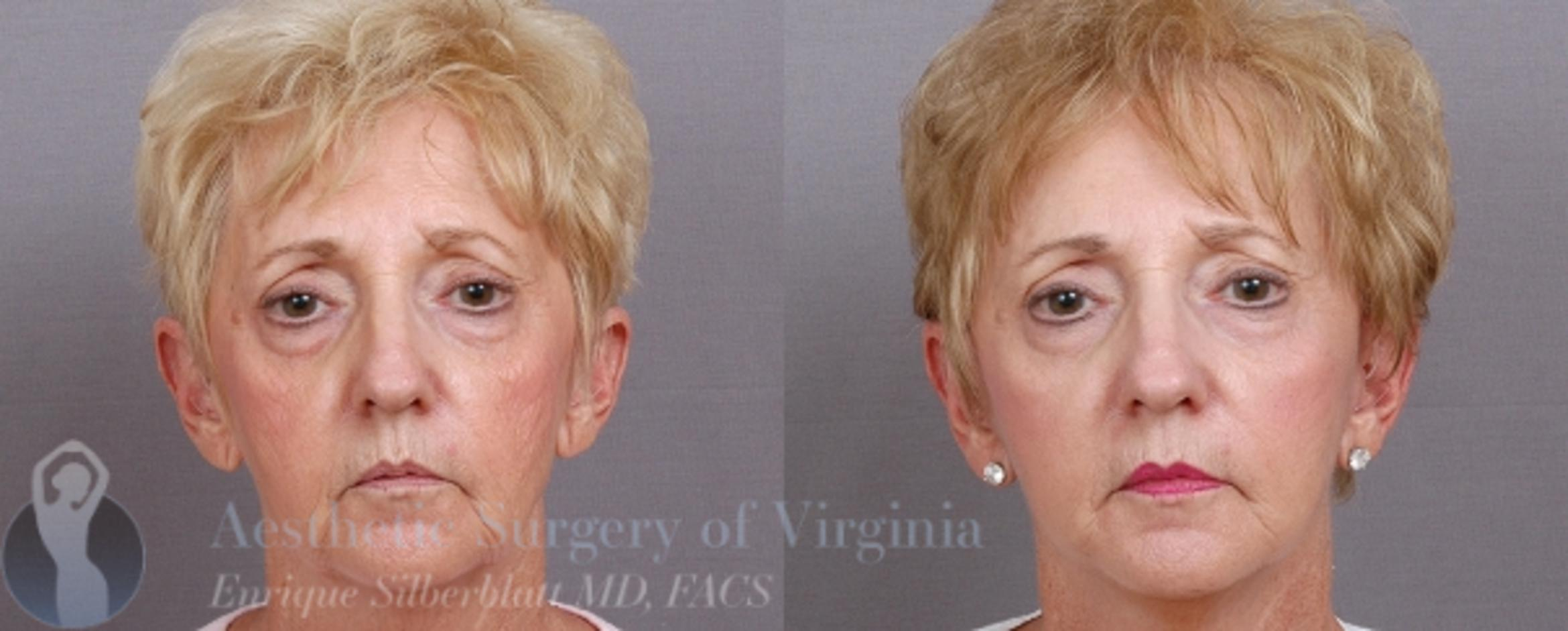 Mini Facelift Case 40 Before & After View #1 | Roanoke, VA | Aesthetic Surgery of Virginia: Enrique Silberblatt, MD