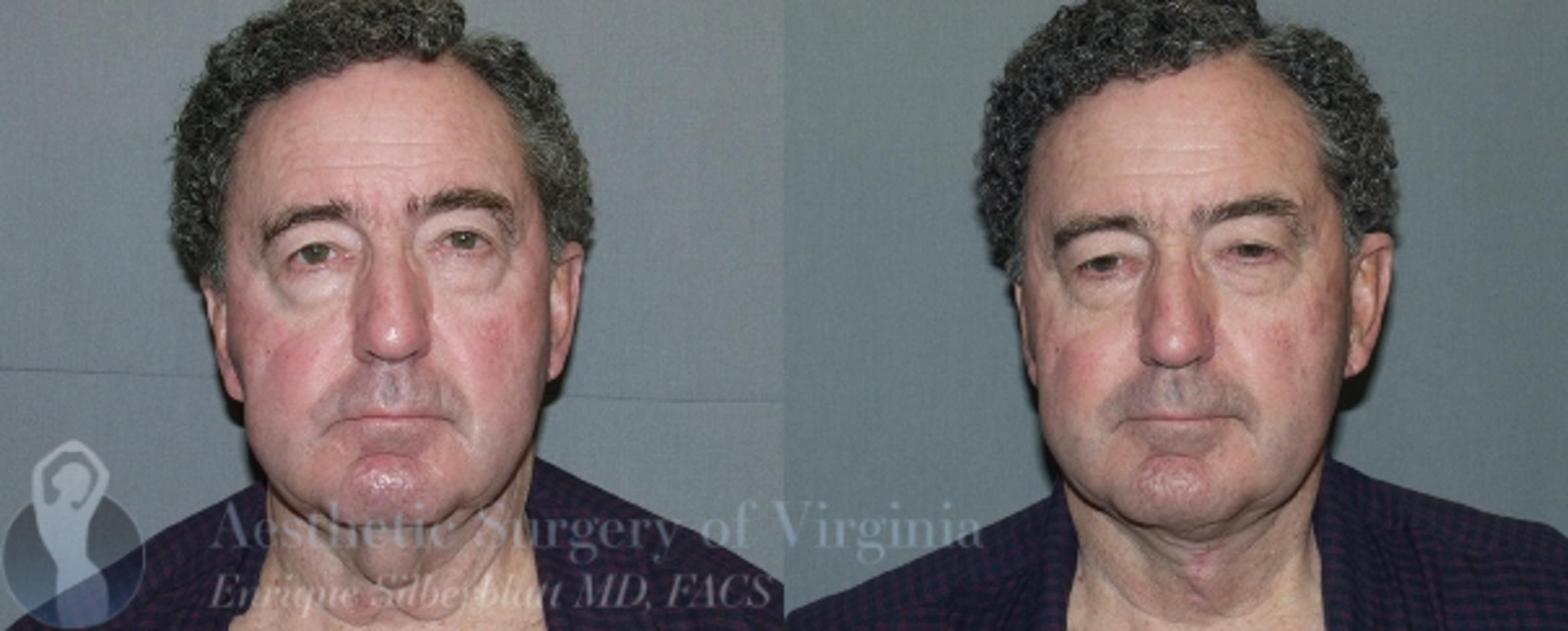 Neck Lift Case 49 Before & After View #1 | Roanoke, VA | Aesthetic Surgery of Virginia: Enrique Silberblatt, MD