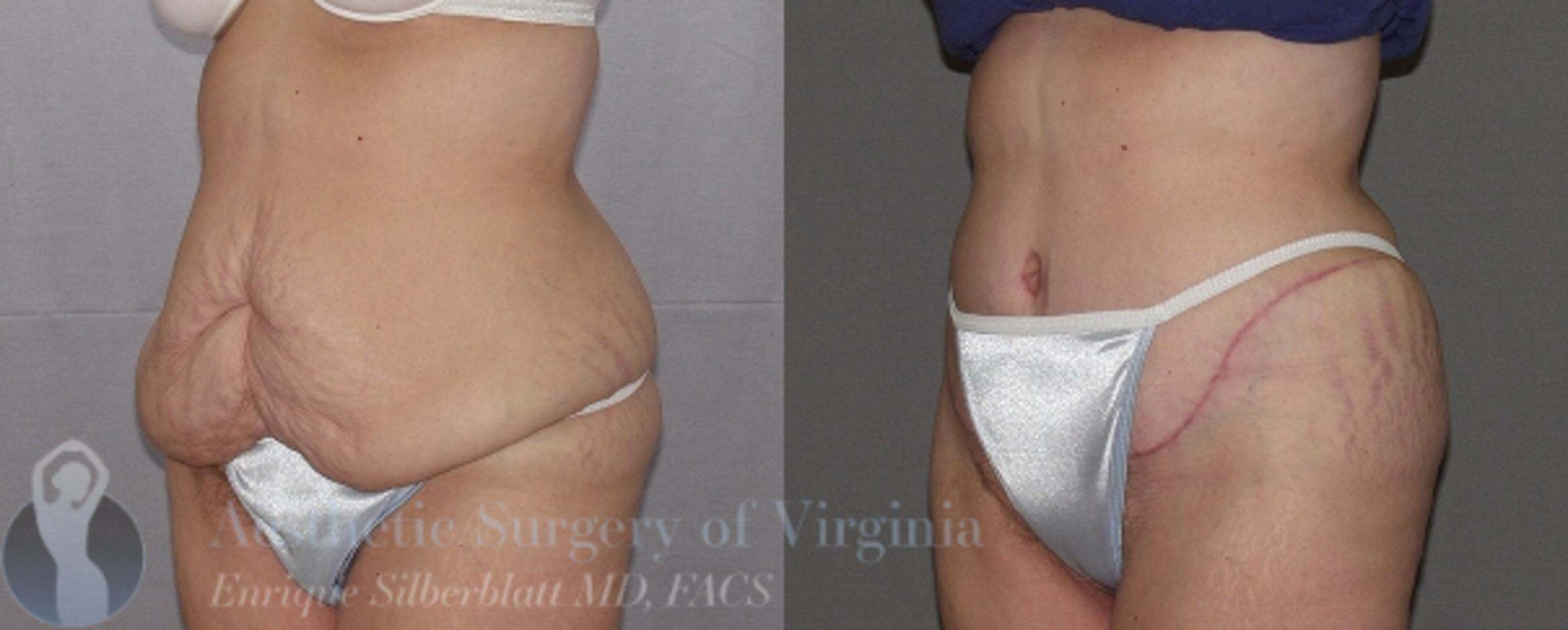 Tummy Tuck Case 25 Before & After View #2 | Roanoke, VA | Aesthetic Surgery of Virginia: Enrique Silberblatt, MD