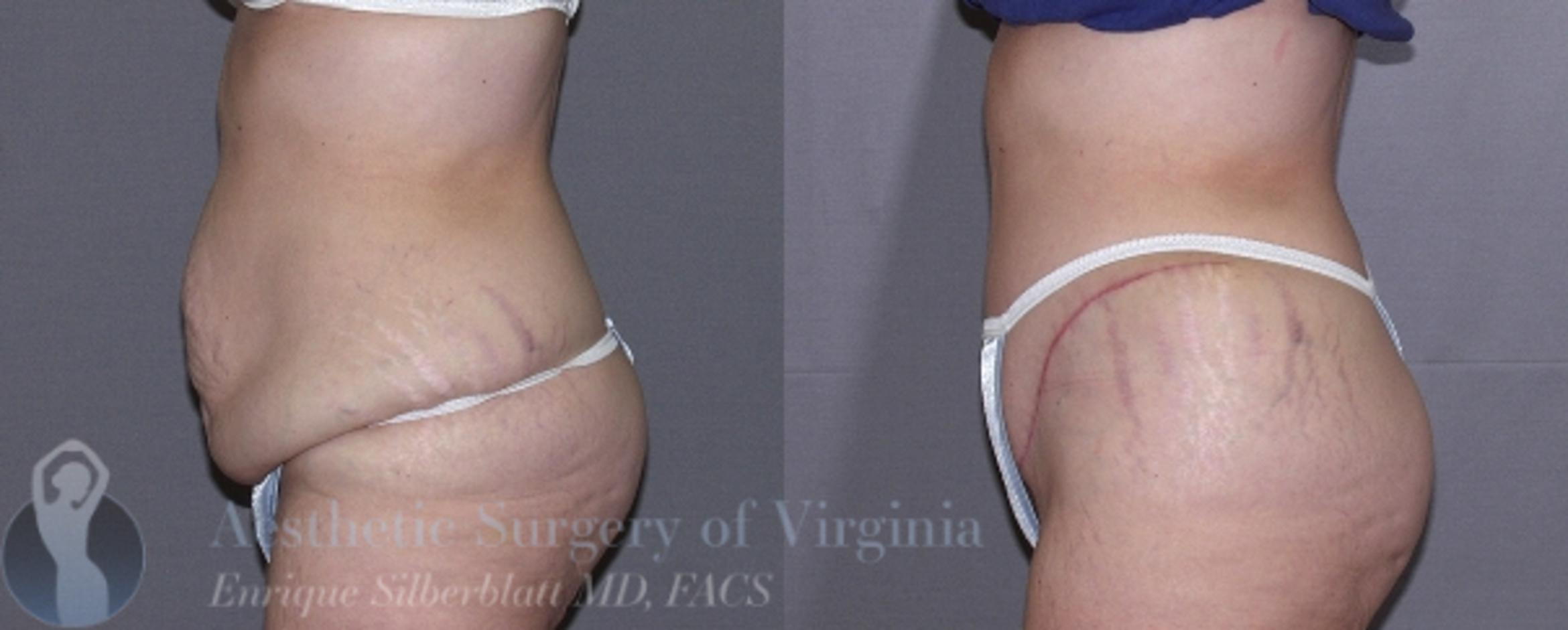 Tummy Tuck Case 25 Before & After View #3 | Roanoke, VA | Aesthetic Surgery of Virginia: Enrique Silberblatt, MD