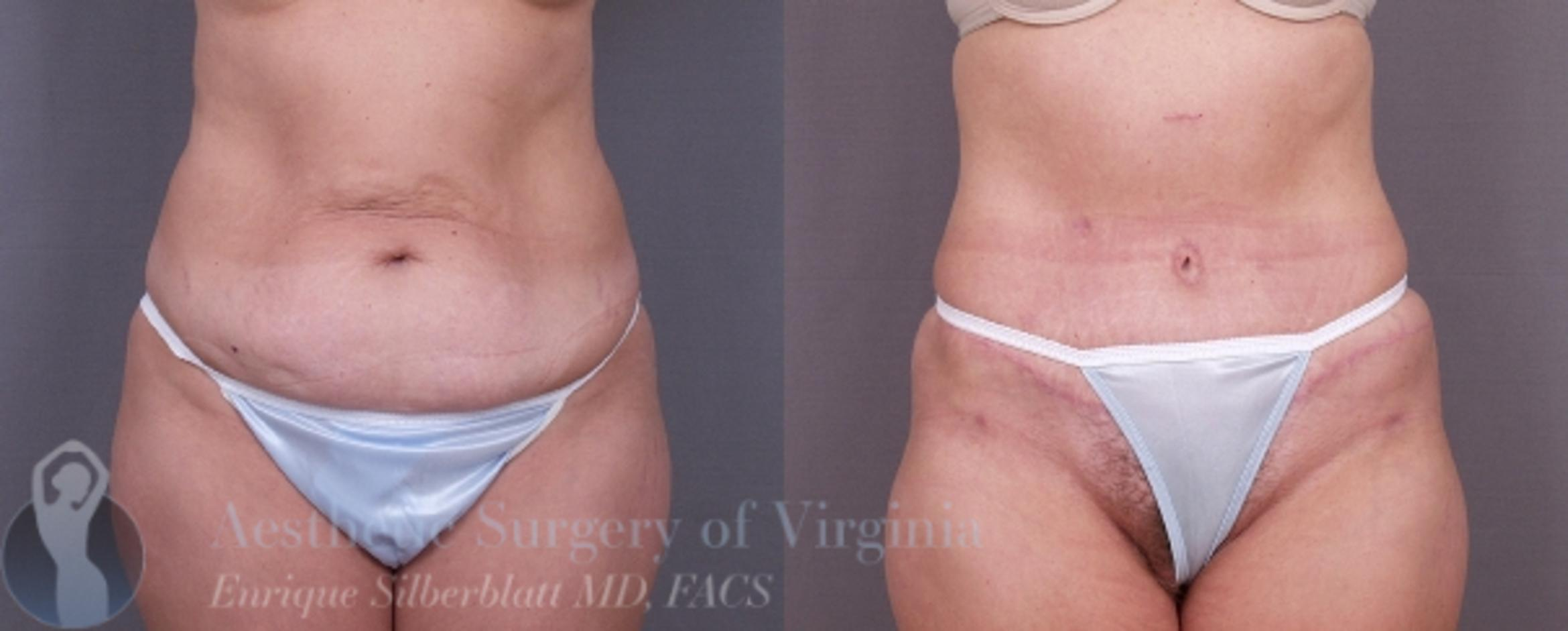 Tummy Tuck Case 26 Before & After View #1 | Roanoke, VA | Aesthetic Surgery of Virginia: Enrique Silberblatt, MD