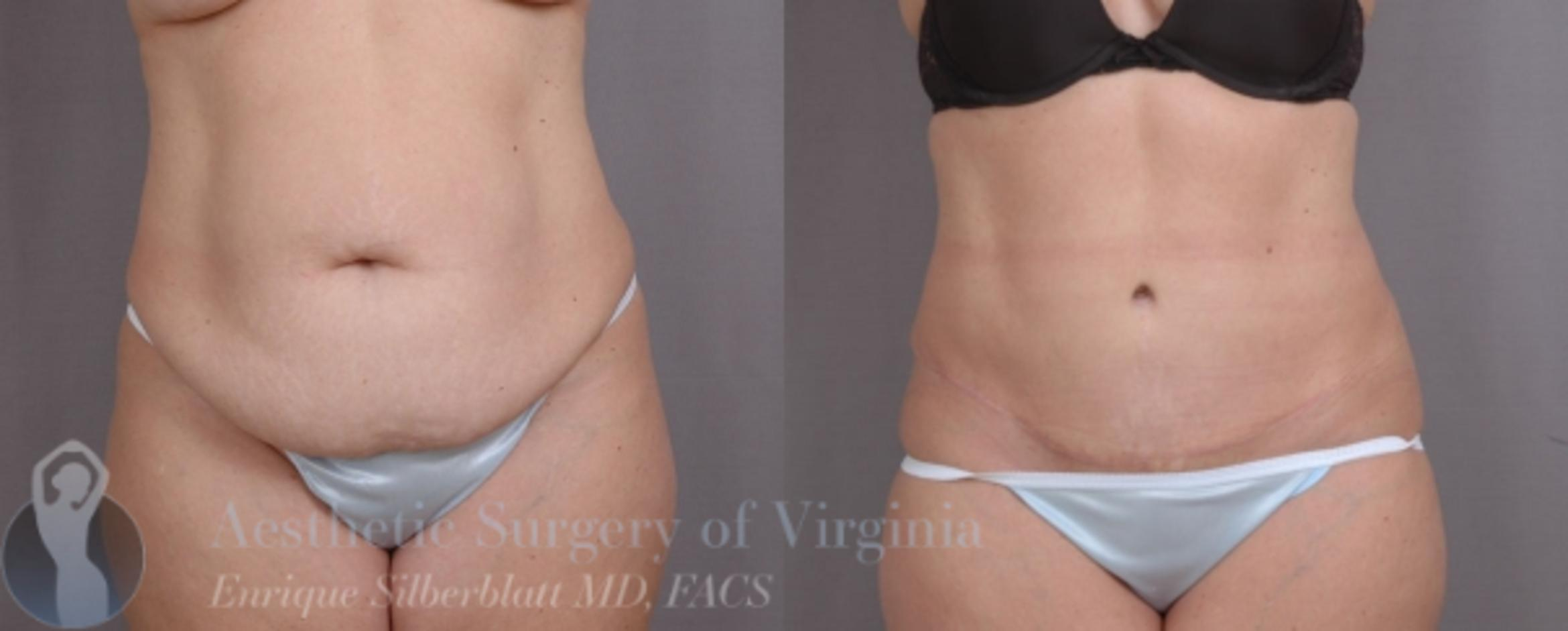 Tummy Tuck Case 29 Before & After View #1 | Roanoke, VA | Aesthetic Surgery of Virginia: Enrique Silberblatt, MD