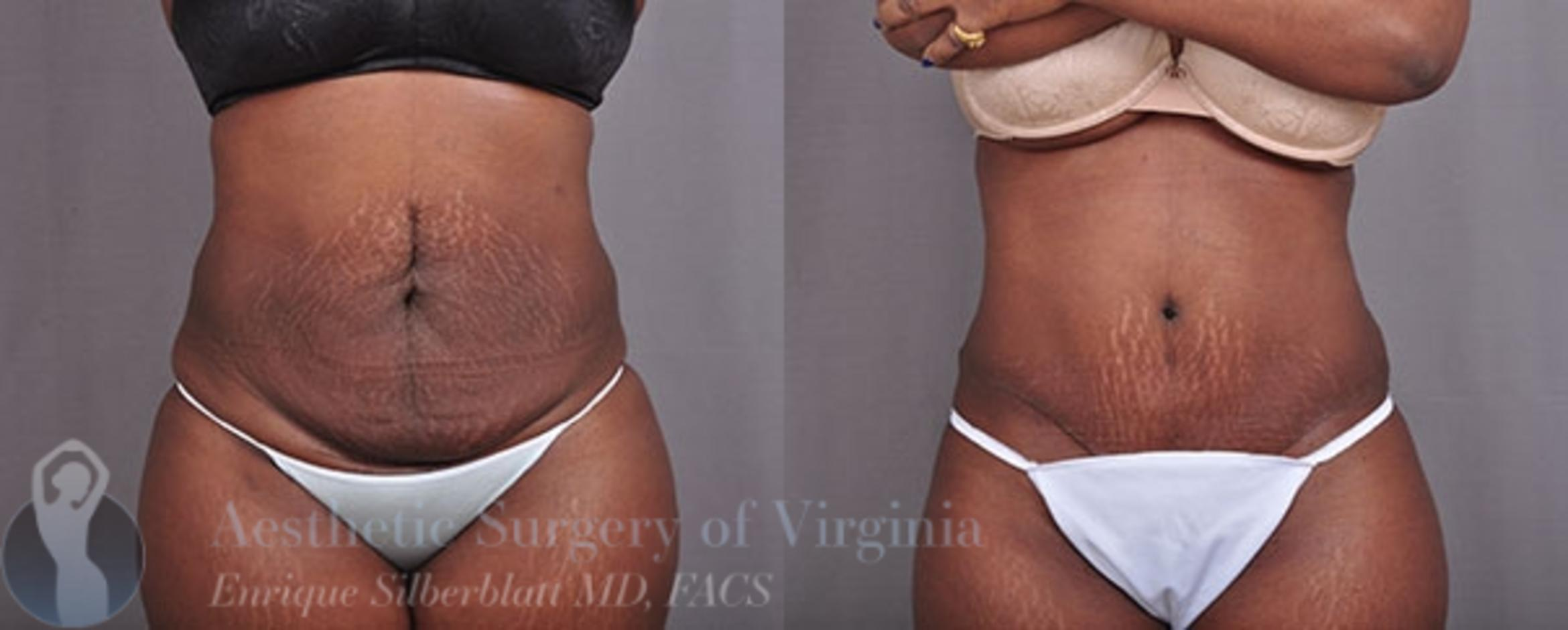 Tummy Tuck Case 30 Before & After View #1 | Roanoke, VA | Aesthetic Surgery of Virginia: Enrique Silberblatt, MD